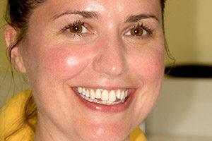 Amanda before teeth straightening at Evolve