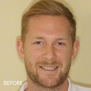 Steve before orthodontic treatment at Evolve