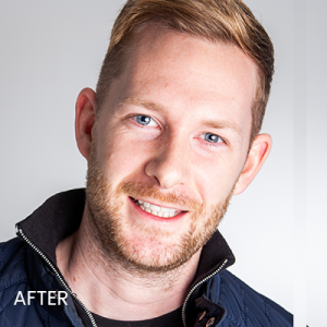 Steve after orthodontic treatment at Evolve