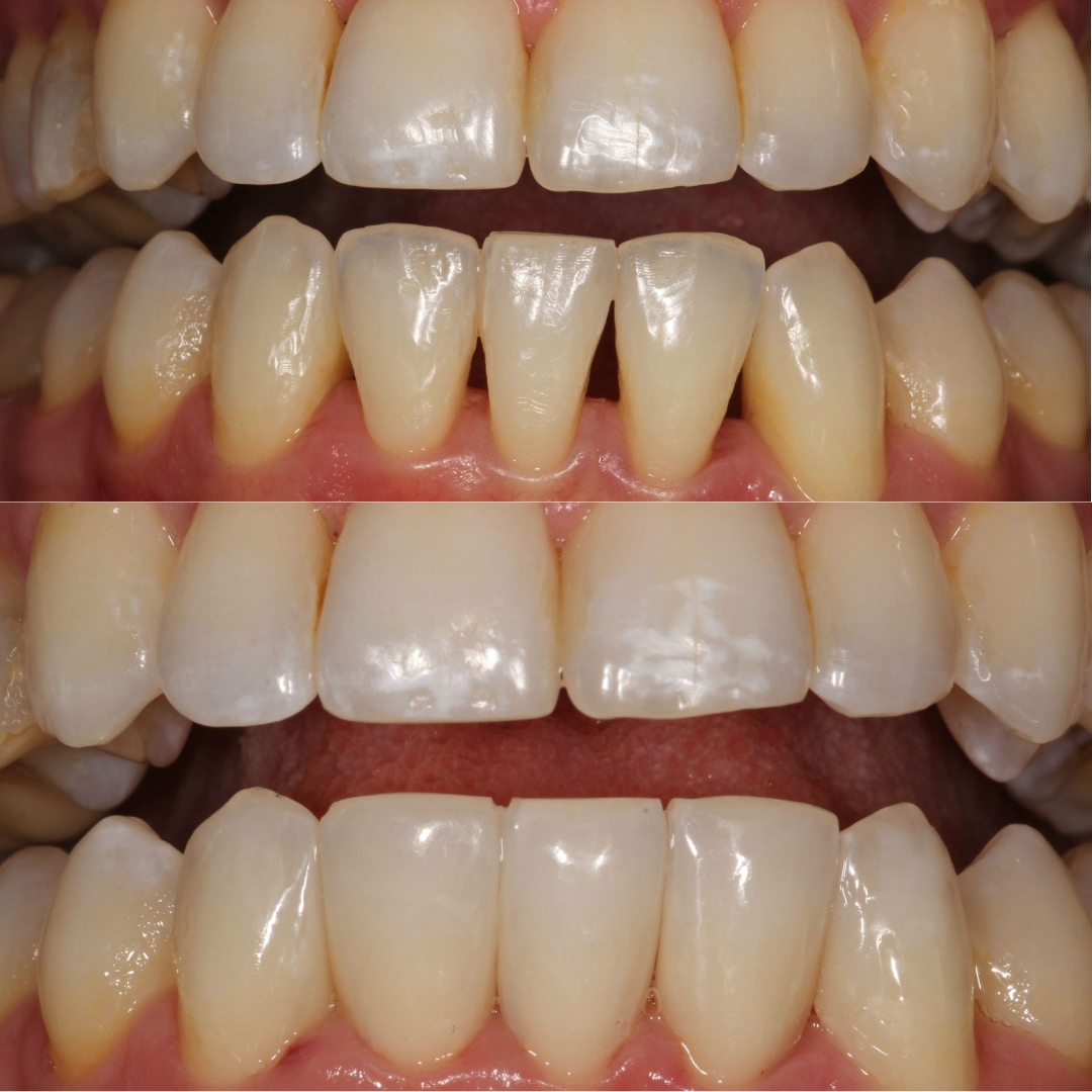 Bioclear composite before and after
