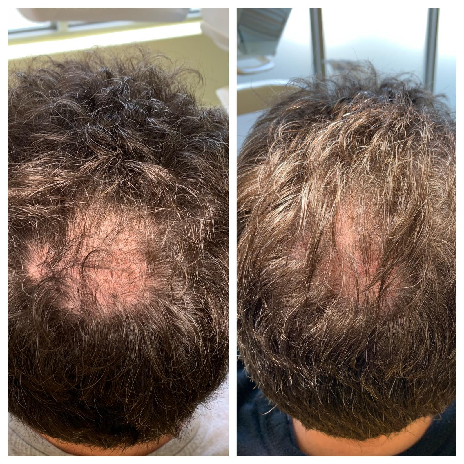 PRP Hair rejuvenation before and after